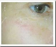facialrejuvenation11