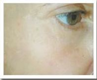 facialrejuvenation21